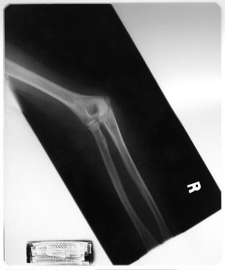 手关节X射线