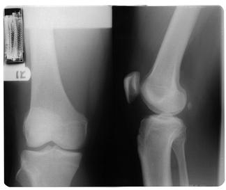 膝关节X射线