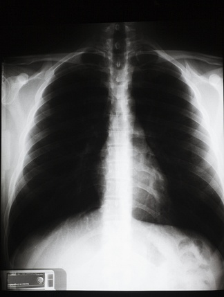 胸部X射线