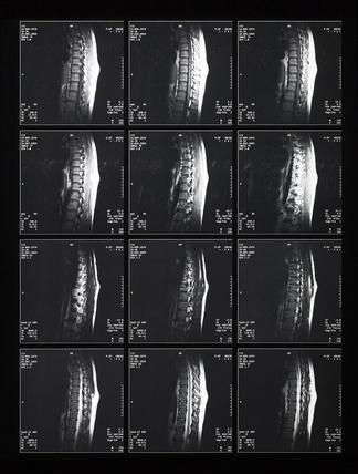 CT磁共振成像X射线
