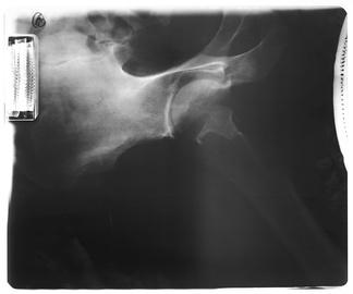 盆腔X射线